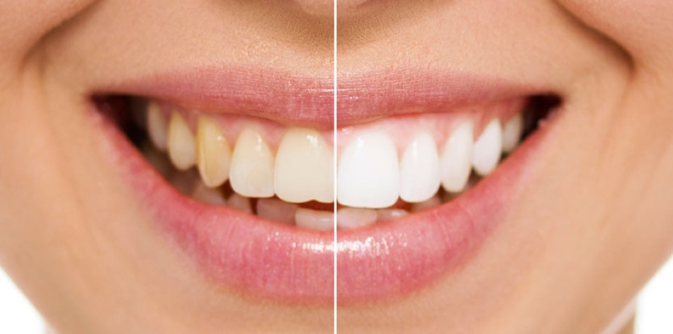 Отбеливание зубов ярославль мармелад